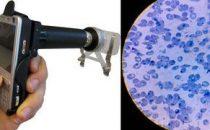 Cellscope, trasforma il telefonino in un microscopio