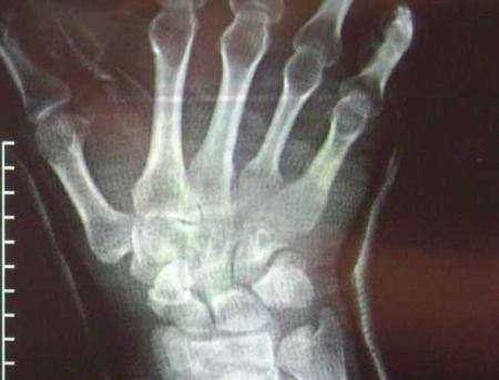 Fratture: si ripareranno con l'osso sintetico