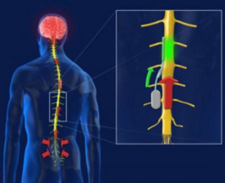 Chip spinale che blocca il segnale del dolore cronico