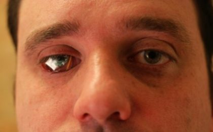 Una micro-videocamera digitale al posto dell'occhio, ecco Bob Spence!