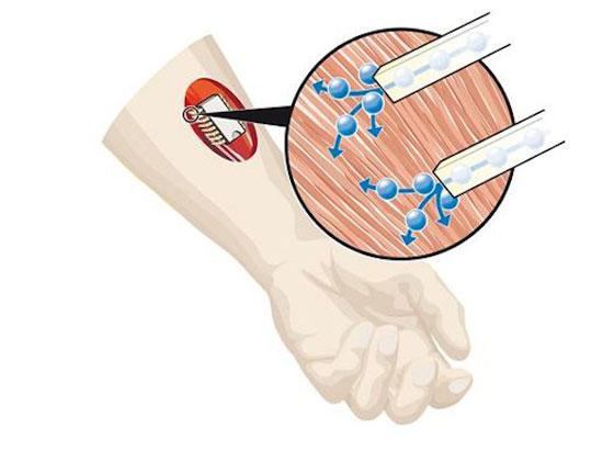 Circuito chimico impiantabile, per recuperare muscoli danneggiati